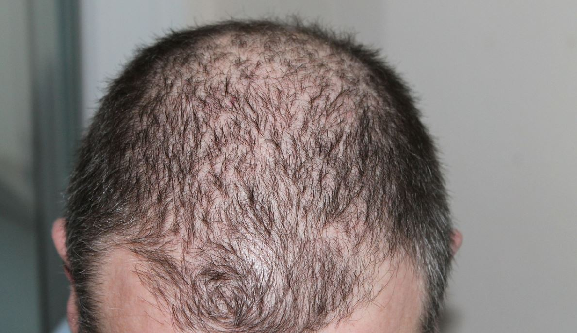 saç ektirme