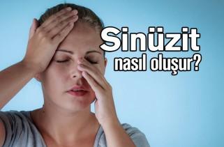 sinüzit